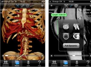 OsiriX HD, ya disponible para iPhone y iPad